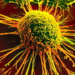 18_cancer_cell